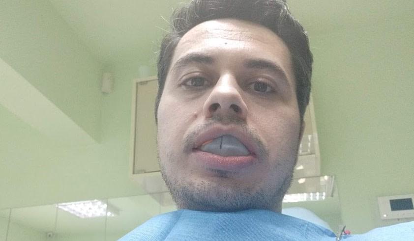 Cam asa aratam in timp ce se lua amprenta dentara